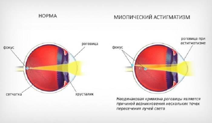 Дальнозоркость у детей: что это такое, слабой степени обоих глаз у ребенка 1 и 3 лет, детская гиперметропия, комаровский