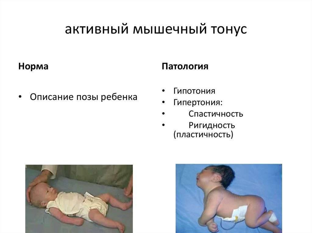 Диагностика и лечение гипертонуса у новорожденных