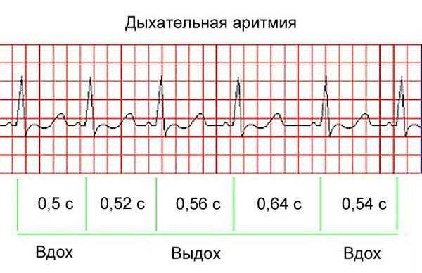 Дыхательная аритмия у ребенка что это такое - лечим сами