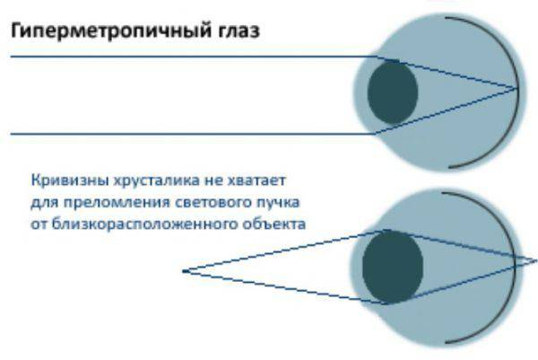 Что такое гиперметропия высокой, средней и слабой степени обоих глаз у детей?