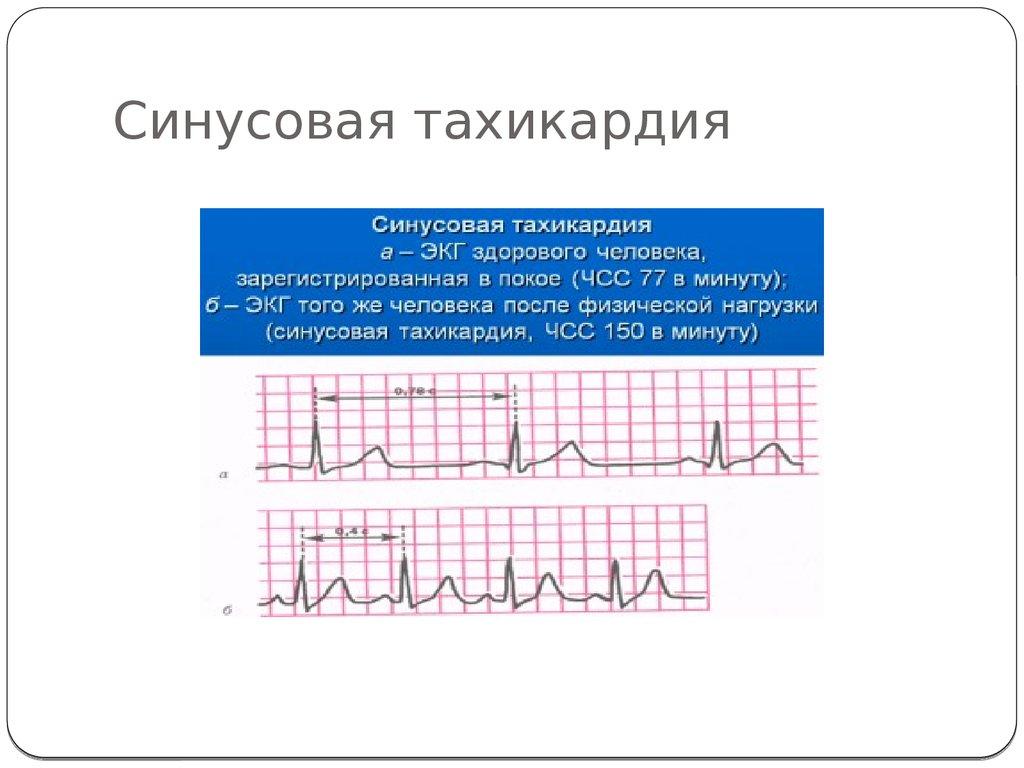 Синусовая аритмия у ребенка: что значат проблемы с сердцем у малышей и подростков дошкольного возраста (4-6 лет), младших школьников (7-10 лет) и старше?