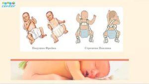Дисплазия тазобедренных суставов у новорожденных, признаки у грудничков