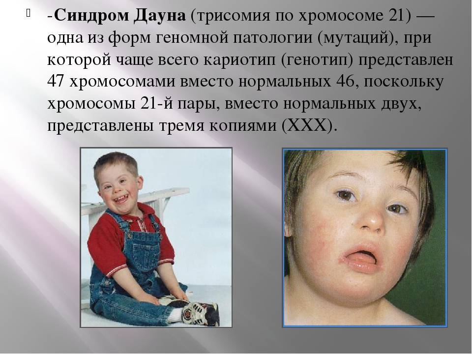 Синдром дауна - формы, особенности развития детей, сопутствующие заболевания и их лечение