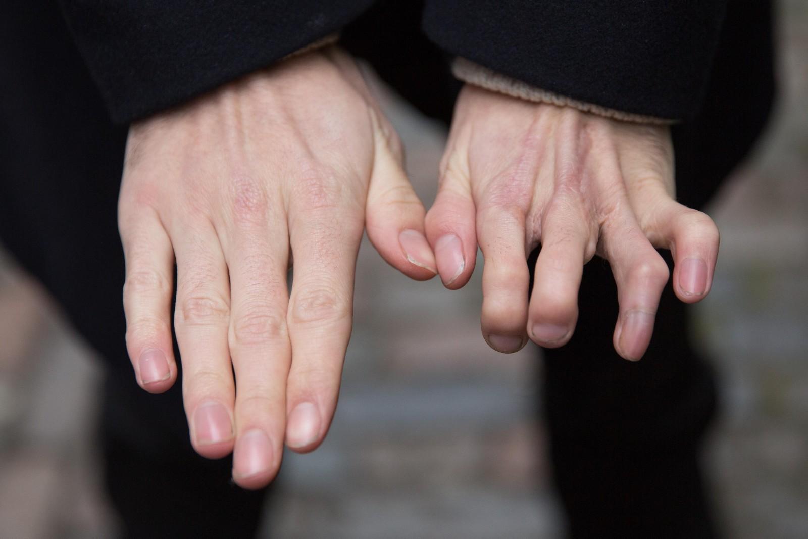Брахидактилия — симптомы и лечение