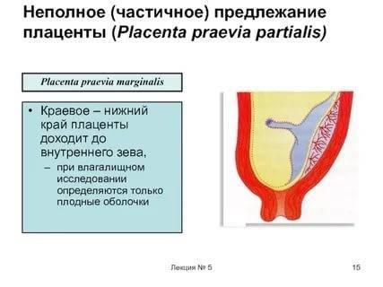 Что такое предлежание плаценты? нормы и патологии прикрепления плаценты