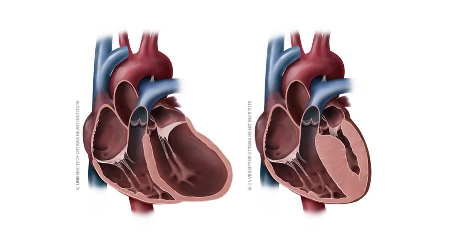 Вторичная кардиомиопатия у детей | лечение сердца