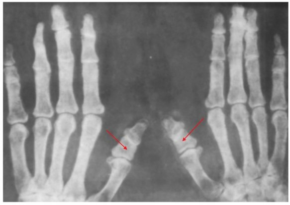Брахидактилия - симптомы и лечение, фото и видео