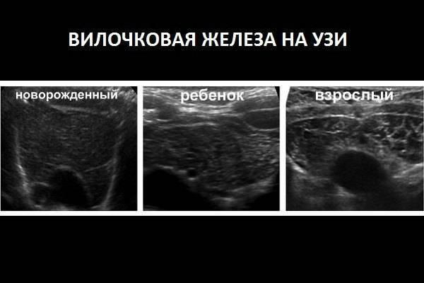 Узи вилочковой железы: показания к обследованию и его результат