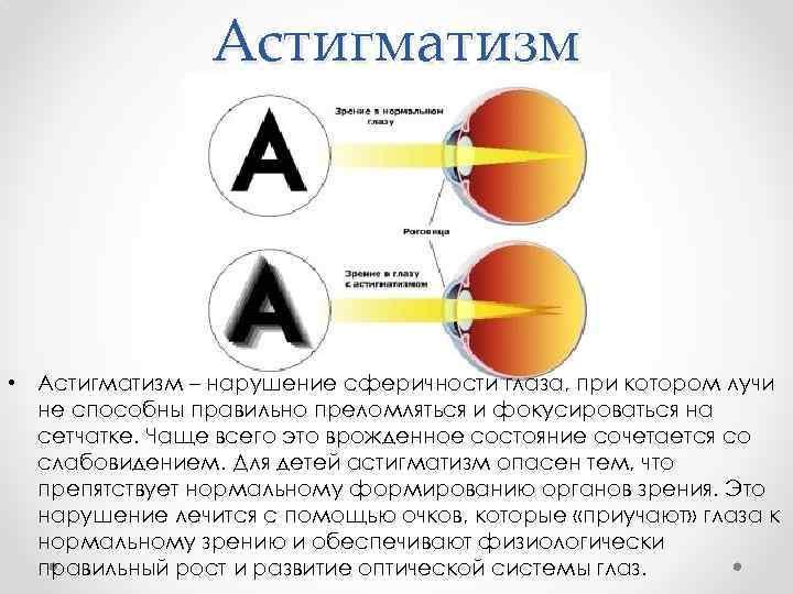 Особенности лечения астигматизма у детей