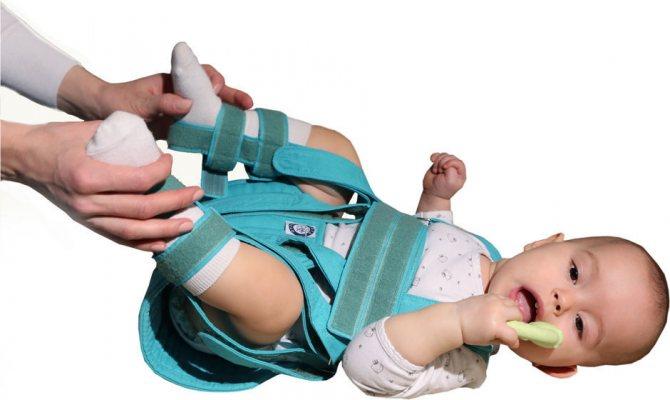Дисплазия тазобедренных суставов у детей