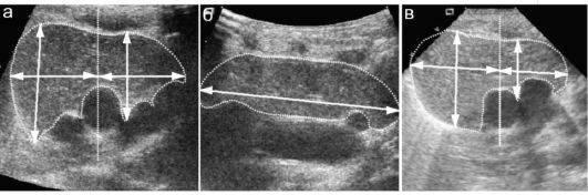 Вилочковая железа у детей – что такое? гормоны тимуса, функции вилочковой железы. вилочковая железа – симптомы заболевания у детей