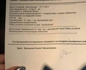 Почему отличаются акушерский срок беременности и реальный | vseproberemennost.ru