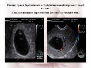 Почему замирает беременность?