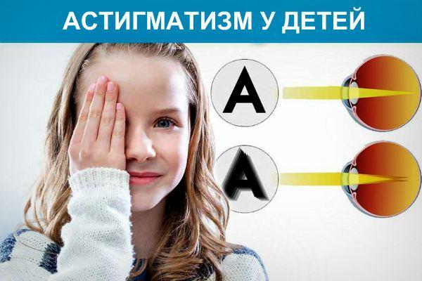 Астигматизм у детей: лечится или нет данное заболевание, какие способы терапии и коррекции существуют?