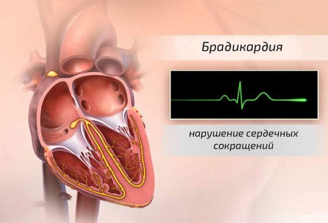 Синусовая брадикардия у детей | лечение сердца