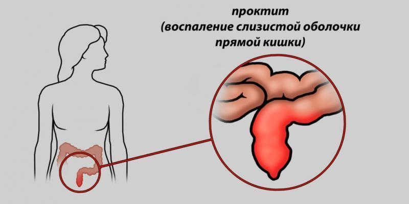 Дискинезия кишечника у детей: причины, симптомы и методы лечения