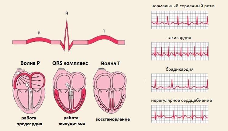 Тахикардия у детей - виды, причины, симптомы и лечение тахикардии | детская кардиология см-клиники в санкт-петербурге
