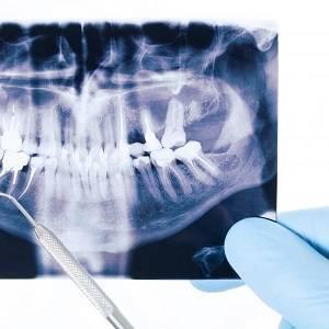 Рентген зуба - виды и расшифровка. как часто можно делать рентген и что он показывает медпортал фармамир каталог врачей и медцентров москвы новости и статьи
