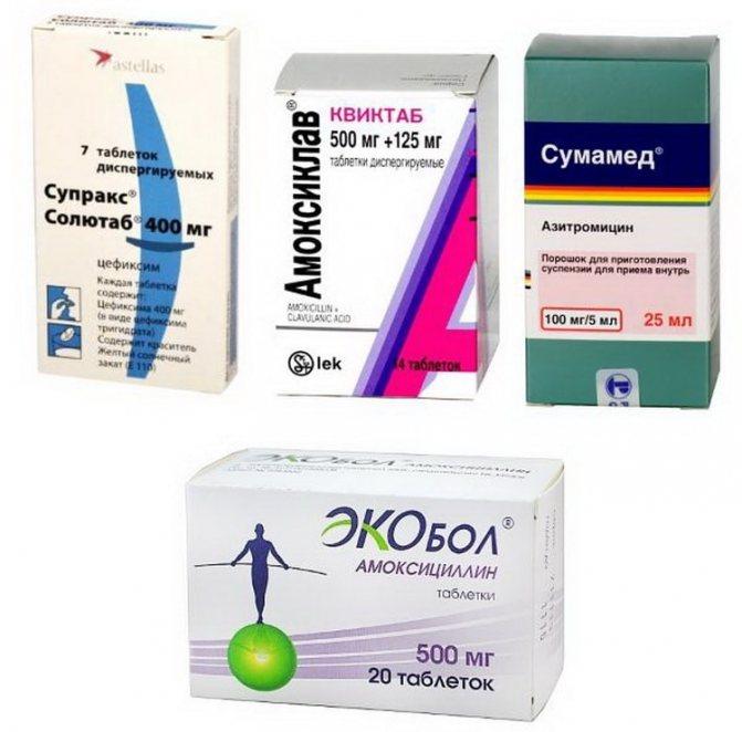 Антибиотики при ангине у детей и взрослых - список эффективных препаратов и как их принимать