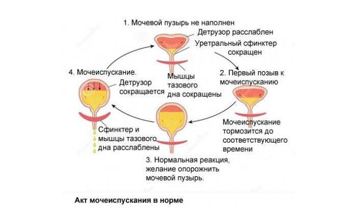 Комаровский о лечении нейрогенной дисфункции мочевого пузыря у детей