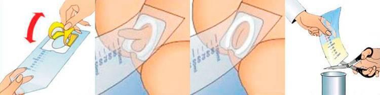 Как собрать мочу у мальчика-грудничка: новорожденного, как взять мочу, мочеприемник, банка и пакет