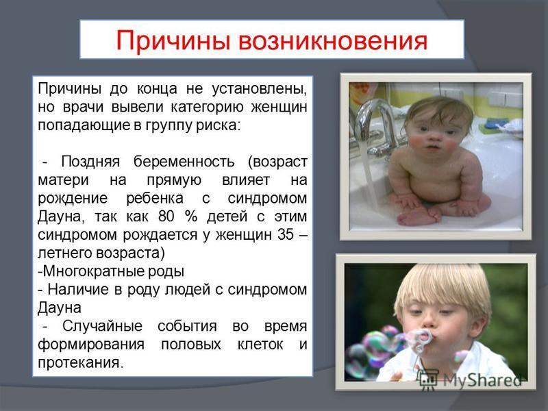 Синдром дауна: что это такое, почему рождаются дети с синдромом дауна, причины / mama66.ru