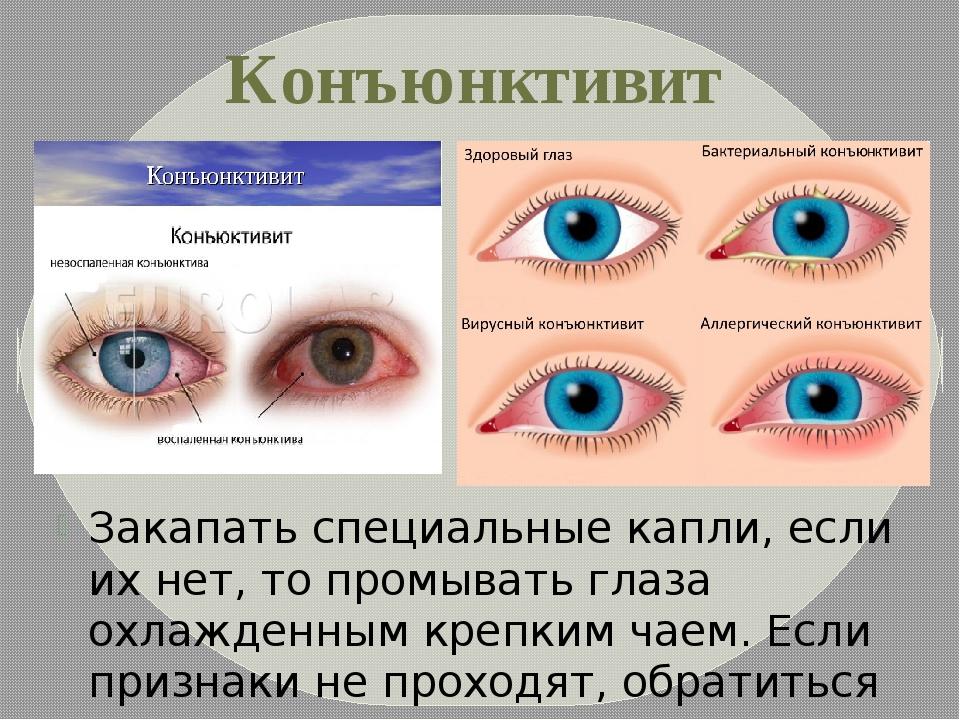 Комаровский о лечении бактериального конъюнктивита глаз у ребенка каплями