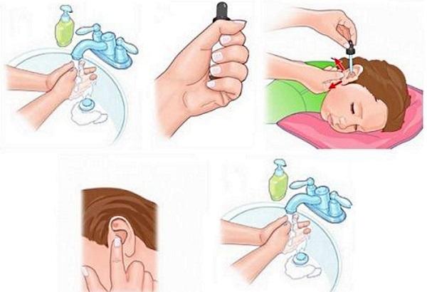 Сульфацил натрия в нос детям: инструкция по применению глазных капель ребенку и взрослому