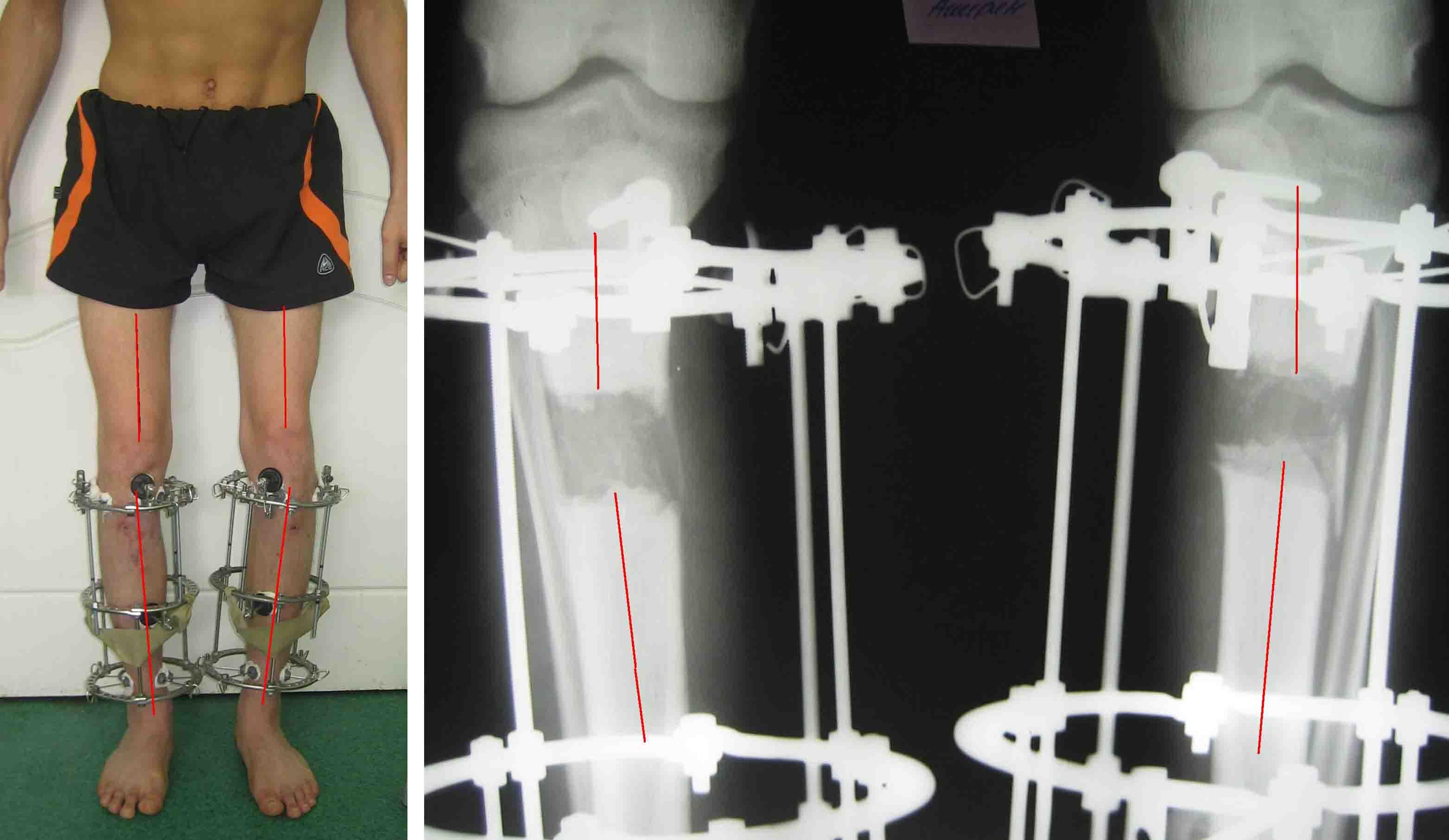 Лечебная гимнастика при вальгусной деформации коленных суставов у детей