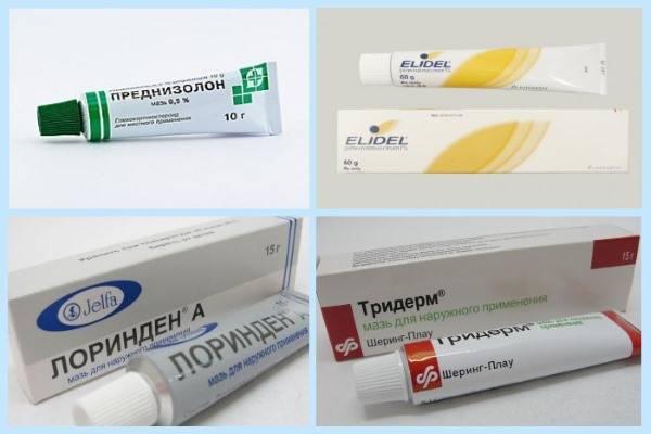 Гормональные мази от дерматита для детей (в том числе атопического): чем могут быть опасны и как правильно их применять?