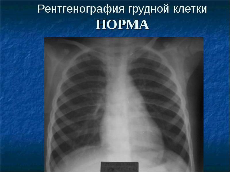 Рентген ребенку и как часто можно его делать