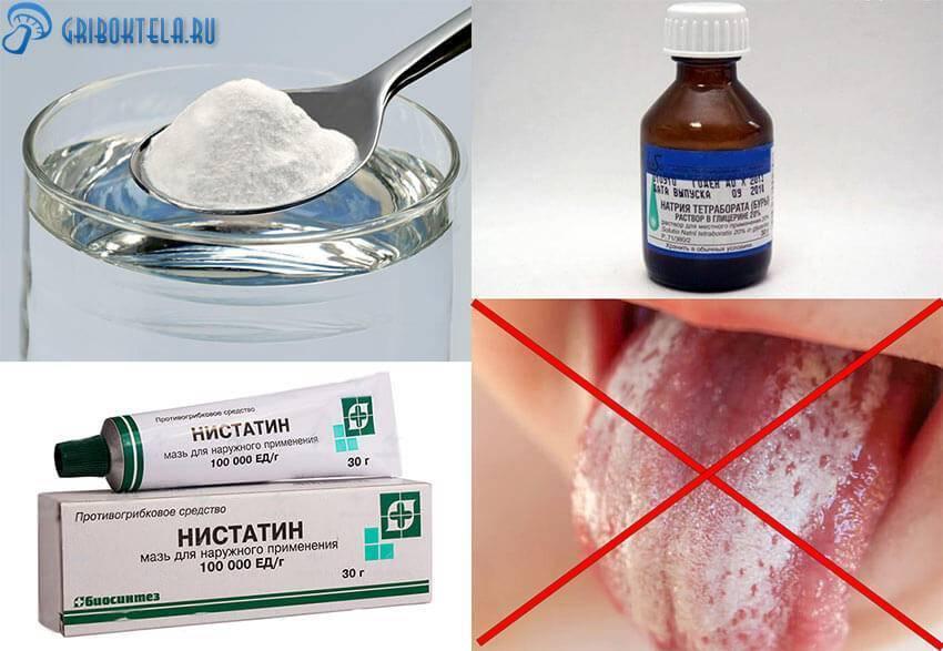 Лекарство от стоматита для детей до года и старше: мази, гели, спреи, растворы и таблетки