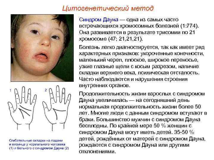 Как развиваются дети с синдромом дауна?