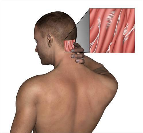 У ребенка болит шея сзади или с правой, левой стороны, он не может поворачивать голову - что делать?