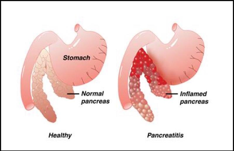 Симптомы и лечение воспаления поджелудочной железы у детей