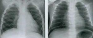 Рентген грудной клетки. показания и противопоказания. методика проведения. описание рентгенографии здоровой грудной клетки