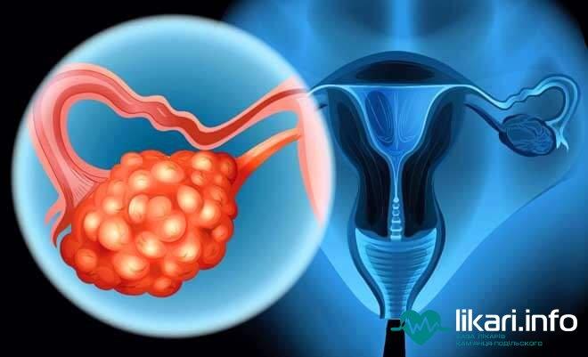 Стимуляция яичников при планировании беременности: виды стимуляции, планирование двойни и др.