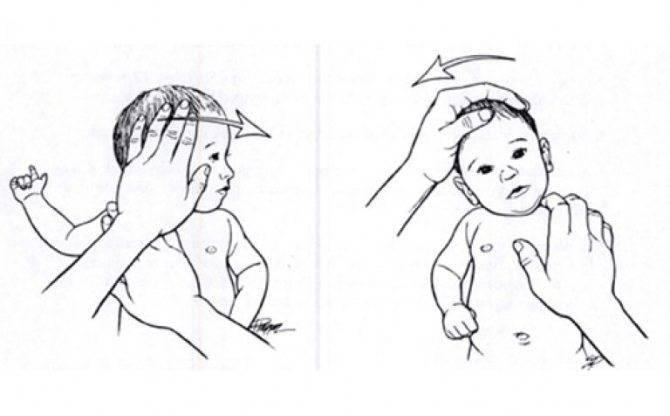 Признаки кривошеи у новорожденных детей. как бороться с заболеванием?