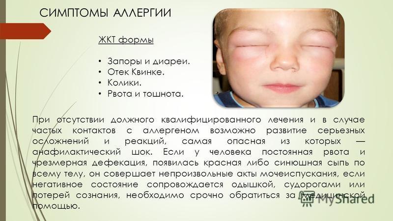 Симптомы отека квинке у детей, фото, первая неотложная помощь грудничку в домашних условиях и дальнейшее лечение