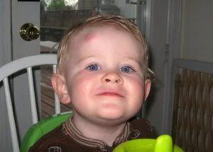 Если ребенок упал. первая помощь ребенку при травме: когда вызывать скорую?