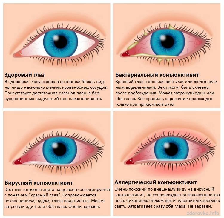 Конъюнктивит глаз - лечение у детей народными средствами