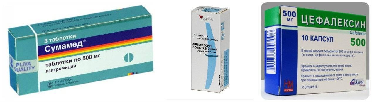 Какие антибиотики при бронхите у взрослых лучше и эффективнее?