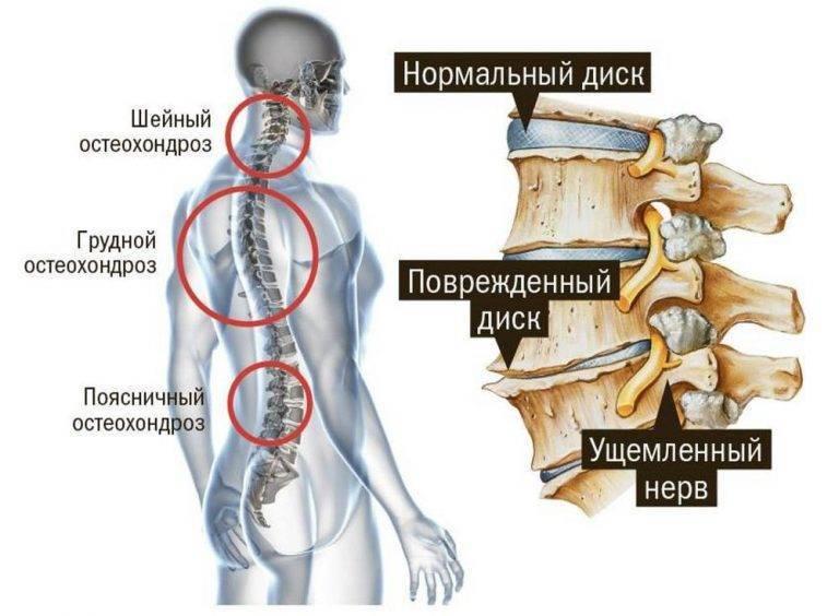 Симптомы остеохондроза при беременности: методы диагностики и лечения болезни