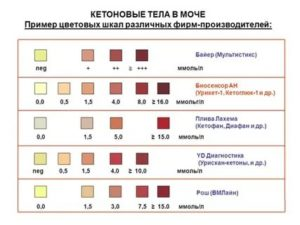 Ацетон в моче у ребенка, кетоновые тела, кетоны: запах изо рта, причины, признаки повышенной нормы и лечение