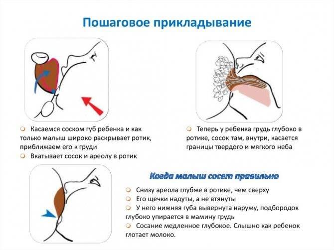 Уплотнение в груди при гв   уроки для мам