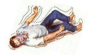 Эпилепсия у детей - симптомы, лечение, признаки, причины возникновения