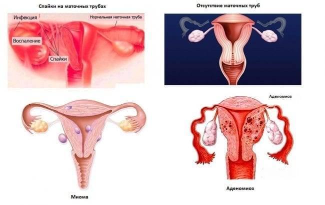 Почему не наступает долгожданная беременность и что с этим сделать