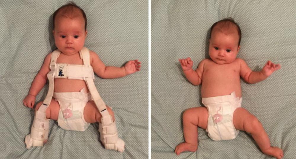 Что нужно знать о дисплазии тазобедренного сустава у ребёнка и её лечении?