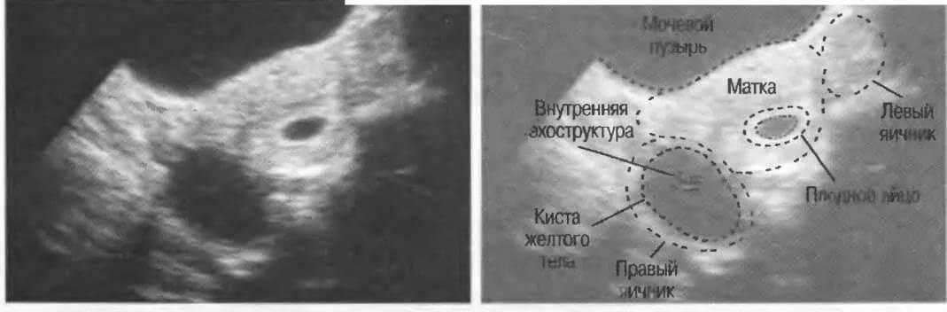 Можно ли перепутать кисту шейки матки с беременностью - здоровье и гигиена