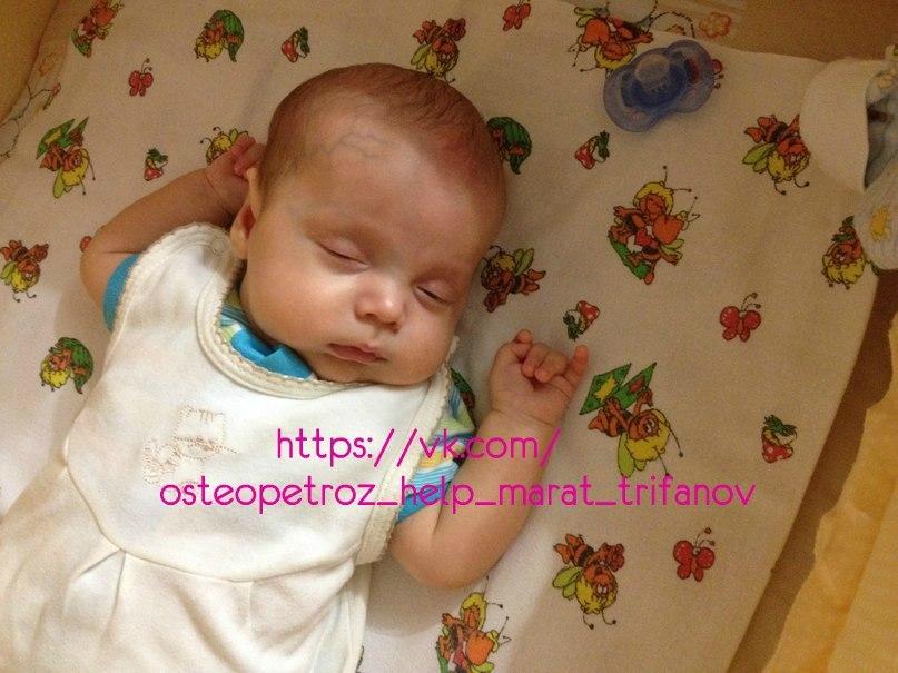 Остеопетроз у детей: причины, симптомы и лечение мраморной болезни в детском возрасте